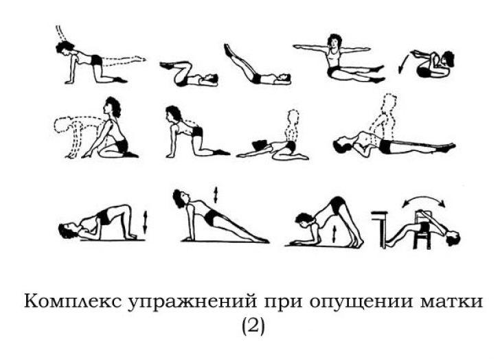Комплекс упражнений при миоме матки
