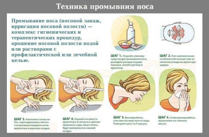 Риновирусная інфекція: симптоми і лікування