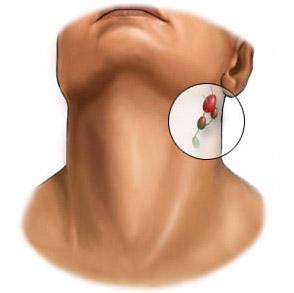 Генерализованная лимфаденопатия