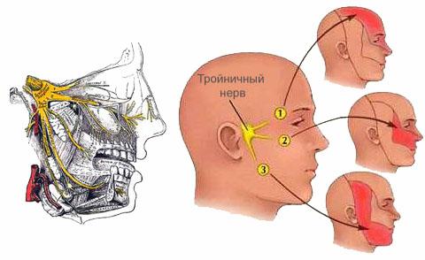 Симптомы невралгии тройничного нерва