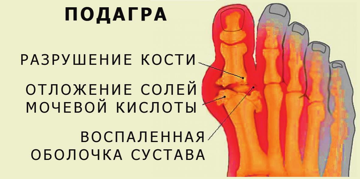 podagra