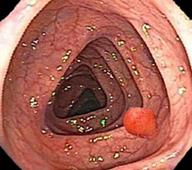 Симптомы полипов толстой кишки