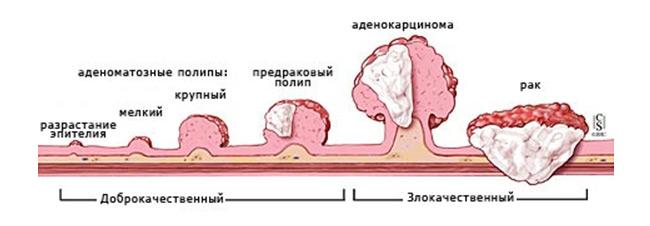 Причины появления полипов толстой кишки