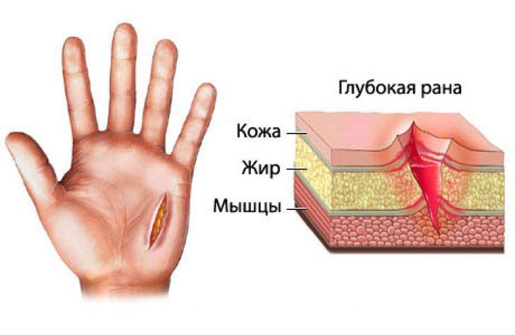 Как сделать порез на руке без боли в домашних условиях