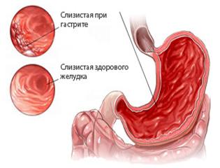 slizictay-pri-gastrite