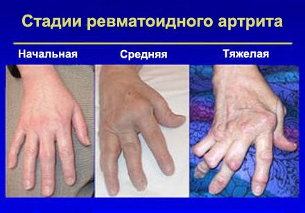 stadii-revmatoidnogo-artrita-paltsev-ruk