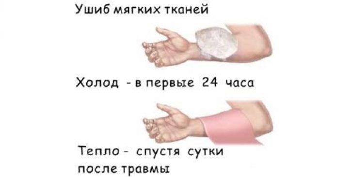 Как лечить растяжение связок на руке