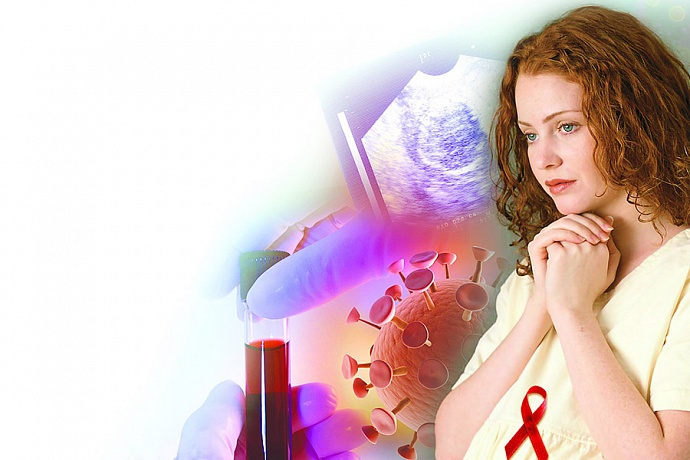 ВИЧ-инфекции у детей