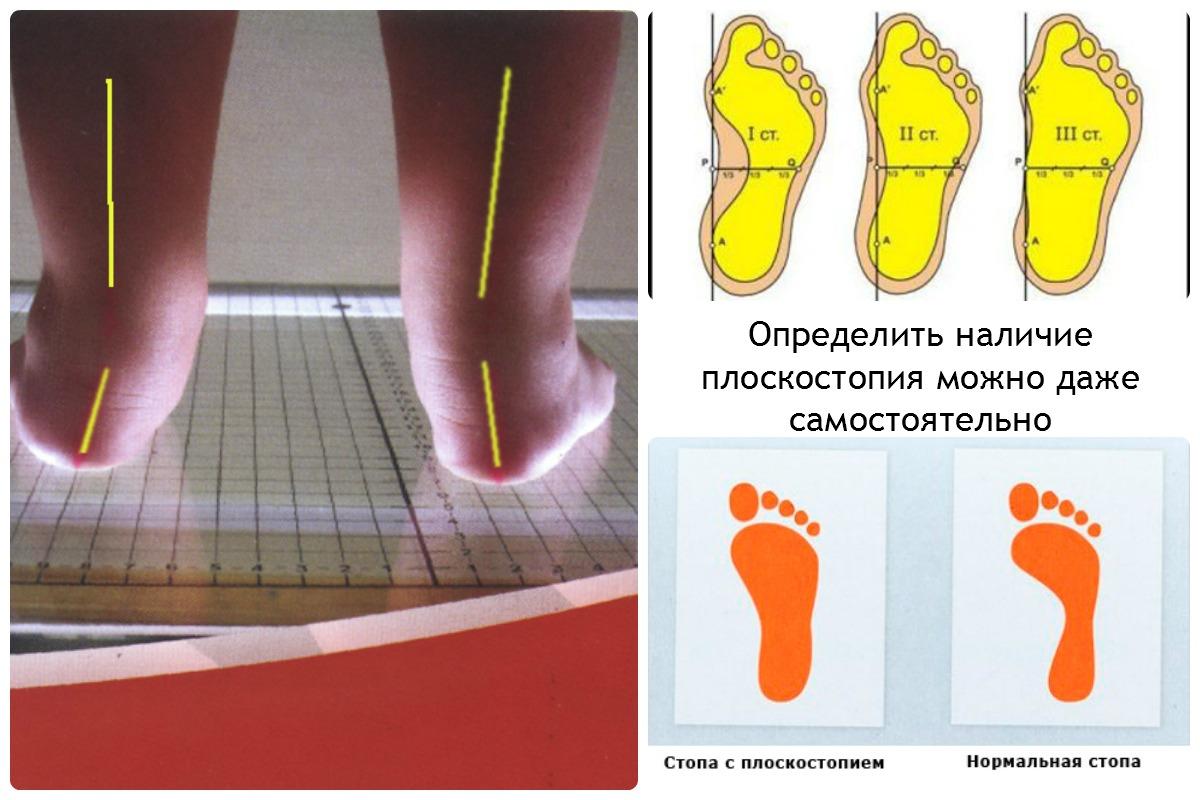 Схемы при плоскостопии