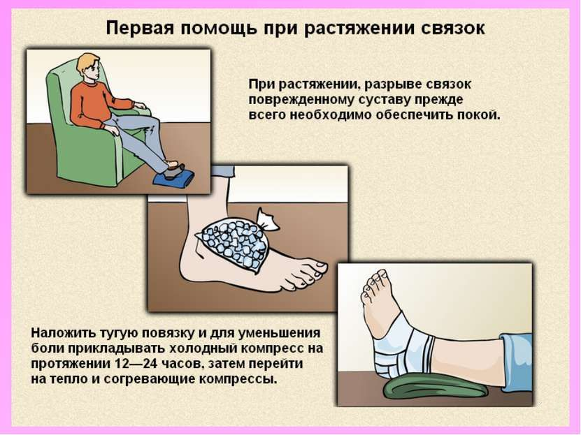 Растяжение связок: лечение в домашних условиях, эффективные ...