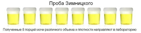 Границы нормы сахара в крови у мужчин