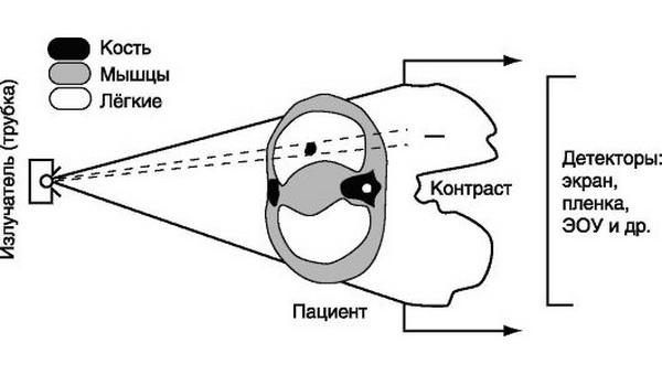 Рентгенография и рентгеноскопия легких: правила проведения процедур