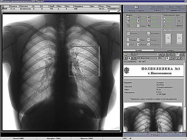 5-цифровая флюорография