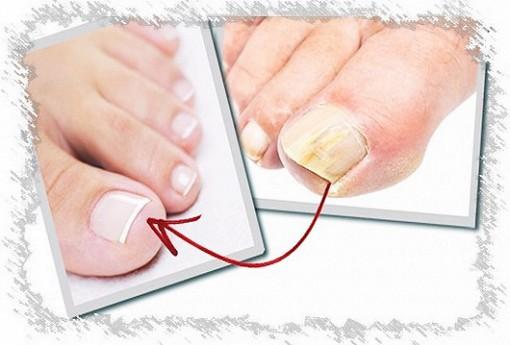 Ноготь на ноге отходит от пальца лечение народными средствами