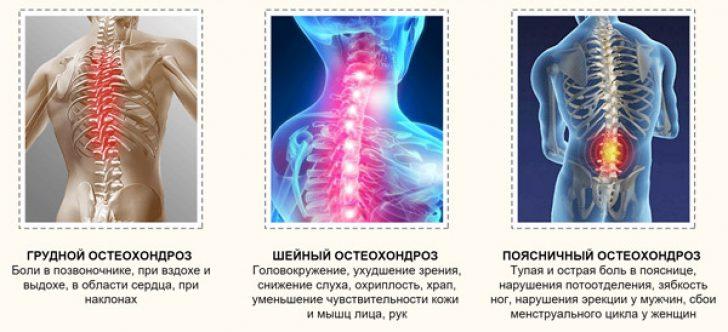 Чем и как лечить остеохондроз позвоночника в домашних условиях 312
