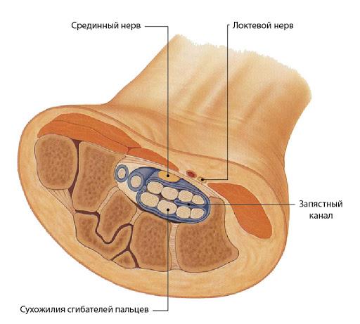 Причины туннельного синдрома запястья