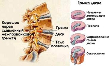 138Как лечить грыжу межпозвоночного диска