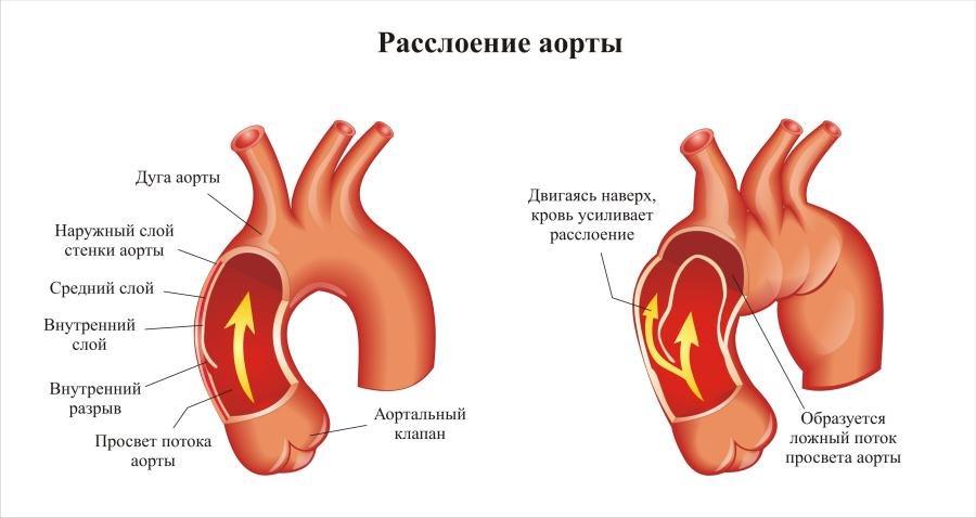 Расслоение аорты: симптомы и первая помощь