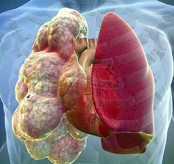 Эмфизема легких: симптомы и лечение