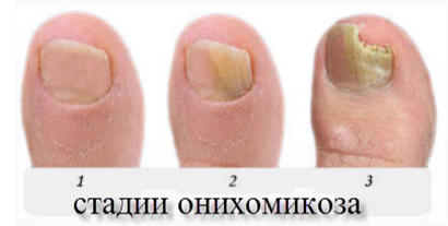 Лечение грибка ногтей народными средствами отзывы