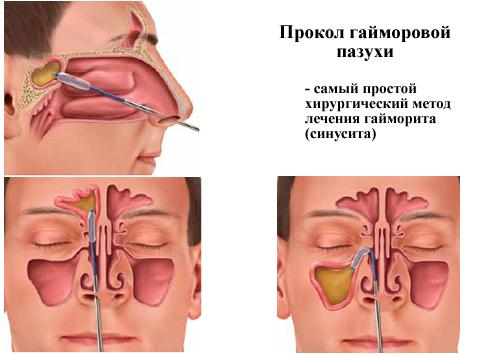народные методы лечения от паразитов в организме
