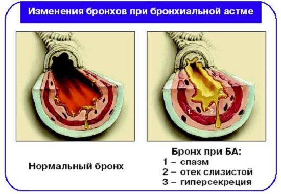 реферат бронхиальная астма и помощь при ней