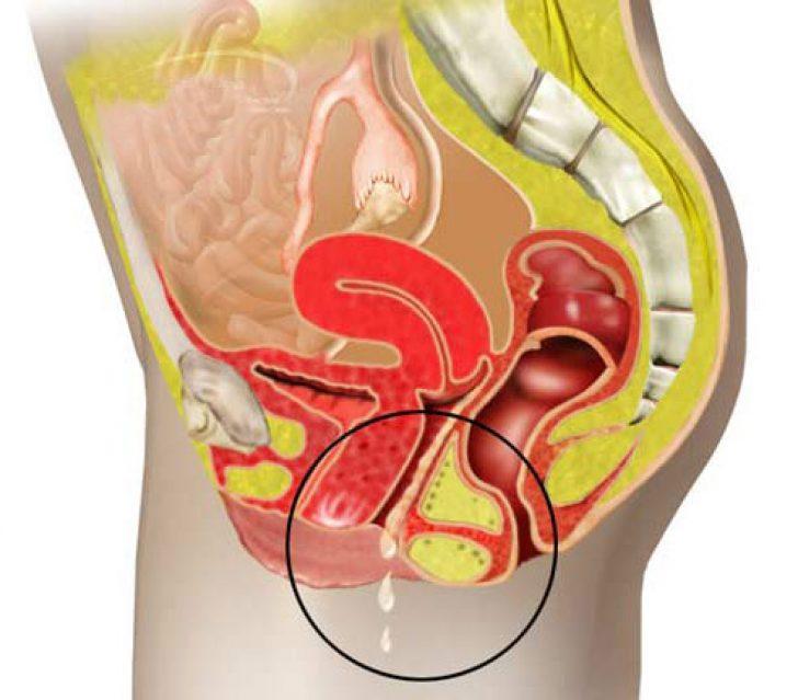 aloe-kandidoz-vaginalniy