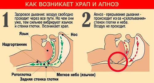 Храп лечение лазером в спб
