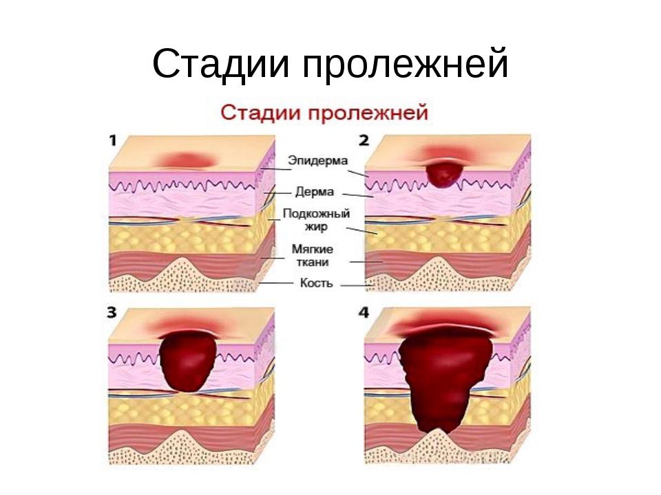 Средства для кожи от пролежней