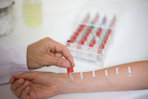 klinika-immunologii-i-allergologii-forpost-novosti-diagnostika-allergii-2