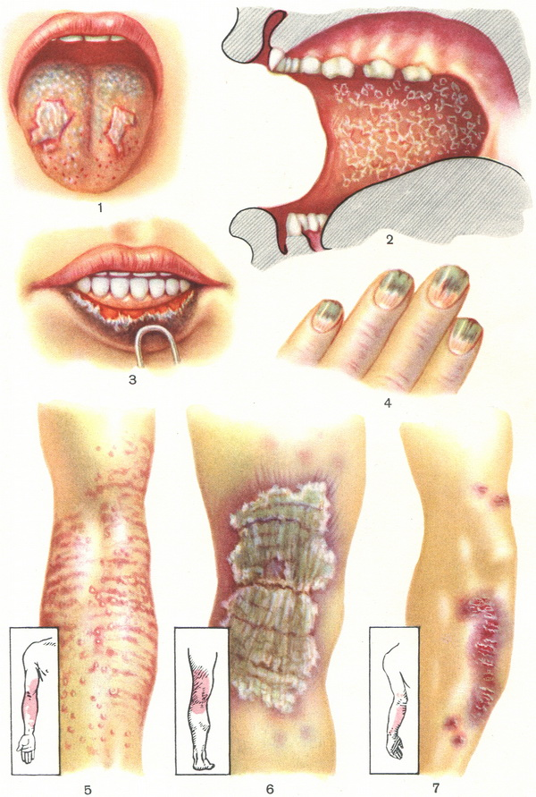 lichen-ruber-planus