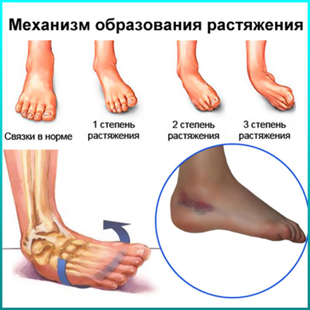 Повреждение сухожилий связок локтевых суставов эффективное лечение ломота в суставах понос