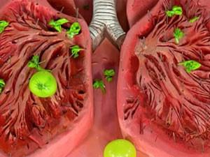 Муколитические лекарственные средства при кашле