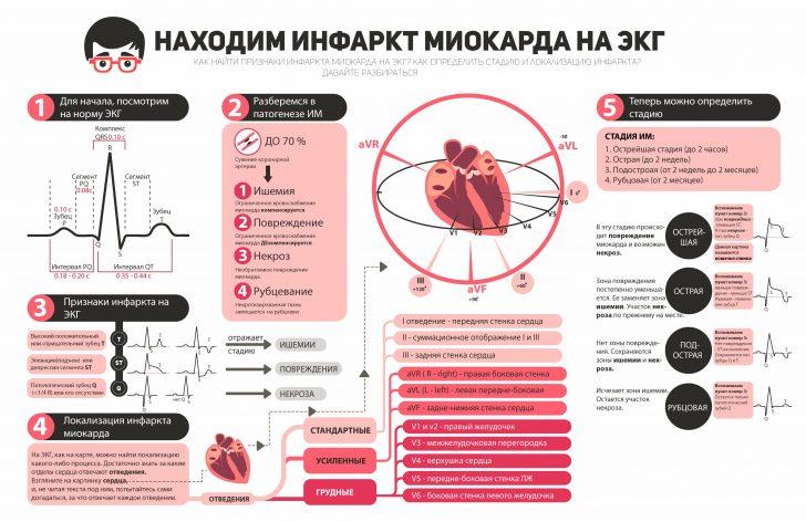 Инфаркт ЭКГ