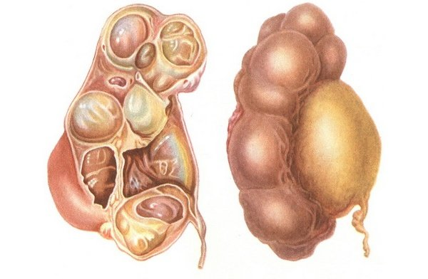 профилактика лечения паразитов народными средствами
