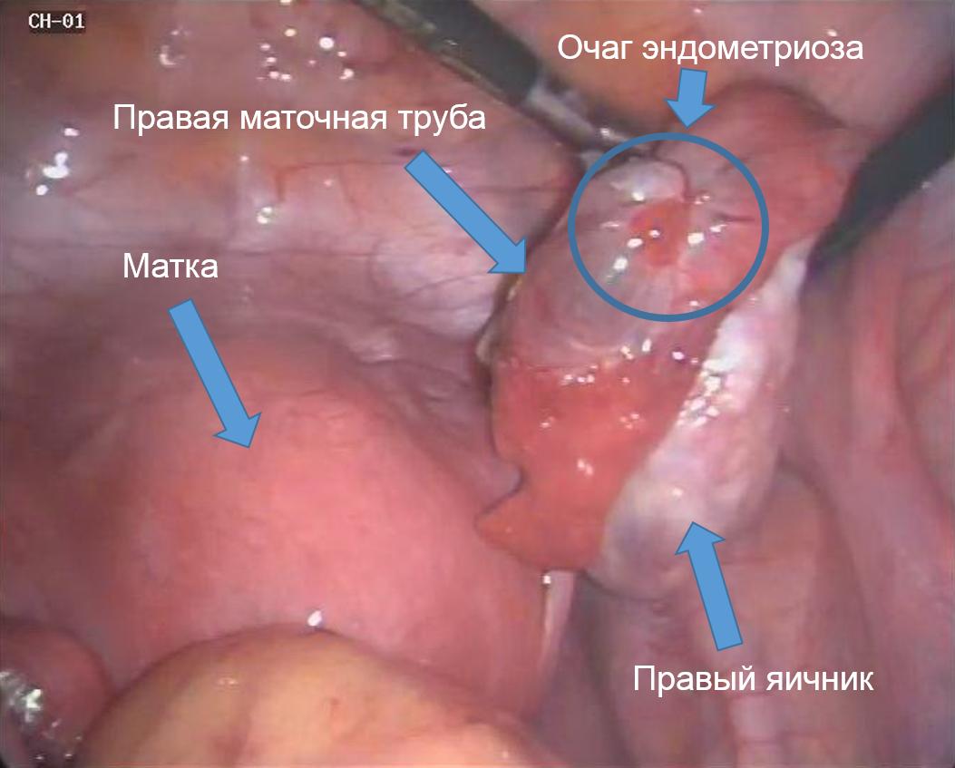эндо1 (1)