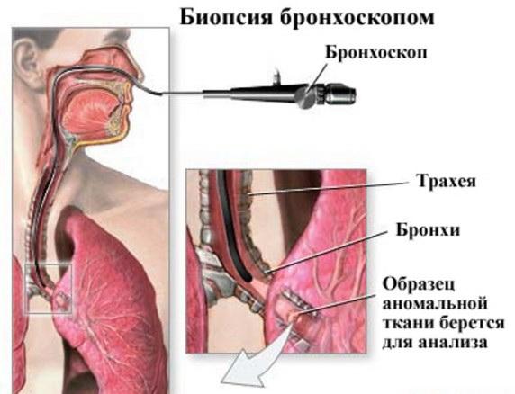 3 бронхобиопсия