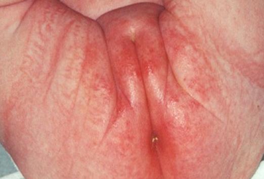 У меня половые губы и у мужа член чешется
