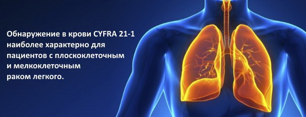 Онкомаркер  Cyfra 21-1