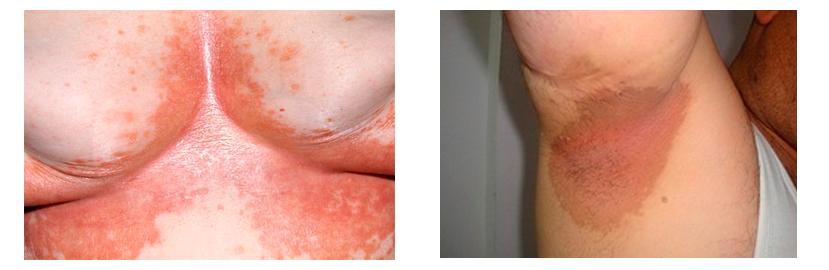 Эритразма – лечение и профилактика поверхностного псевдомикоза