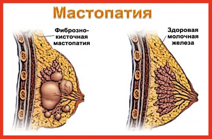 Сбой в работе гормональной системе