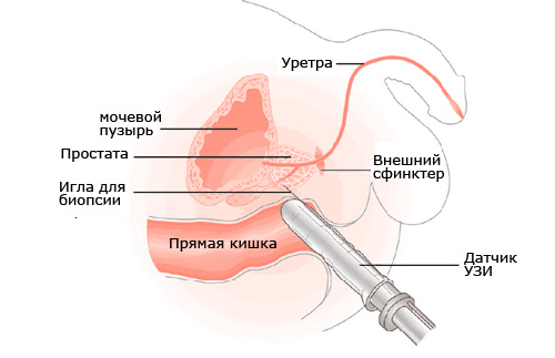 Shema-transrektalnogo-UZI-prostaty