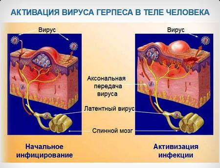 Схема лечения герпес 7