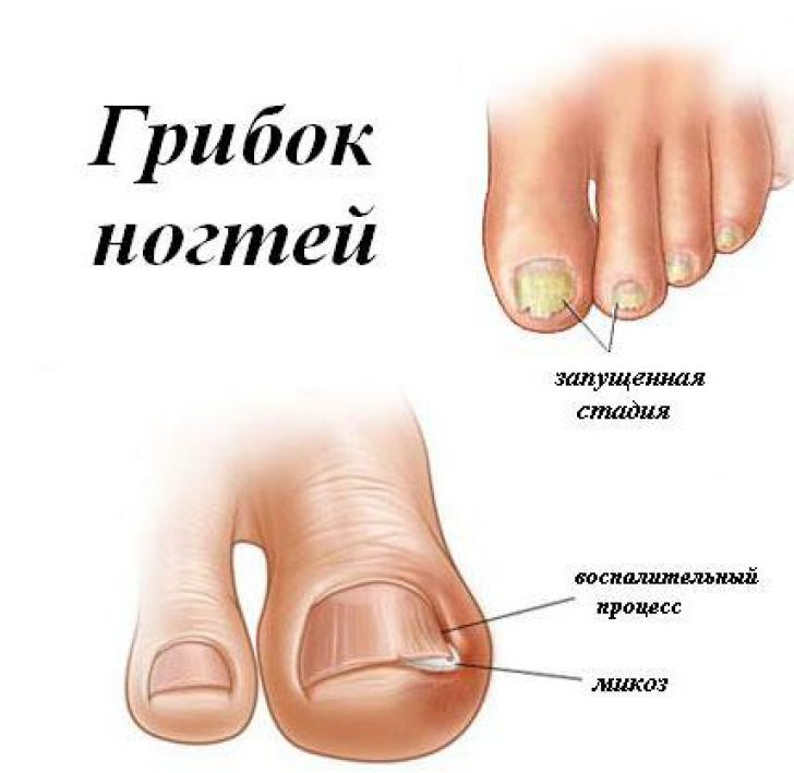 Перекись водорода для лечения грибка на ногтях