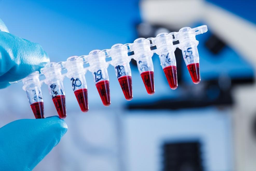 Анализы на TORCH-инфекции