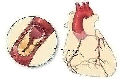Ишемическая болезнь сердца: симптомы, диагностика, лечение
