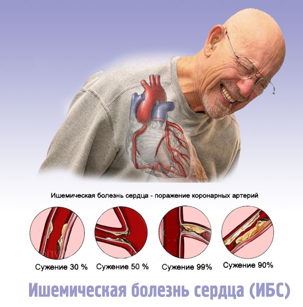Ишемическая болезнь сердца: симптомы, дифференциальная диагностика ...