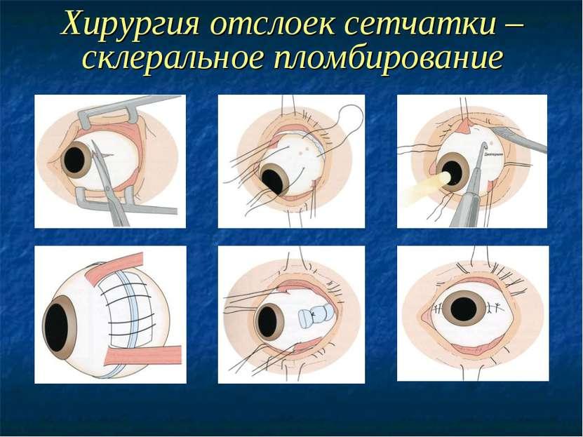 Экстрасклеральные  хирургические методы