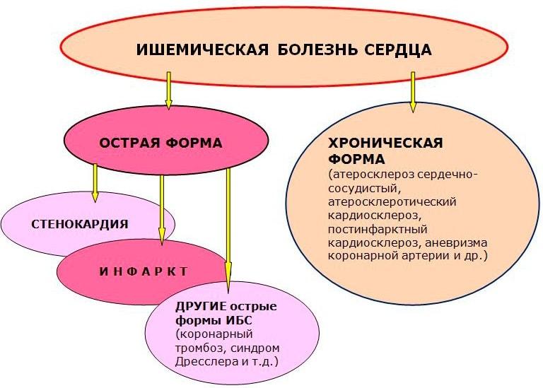 Симптомы и лечение ишемии миокарда