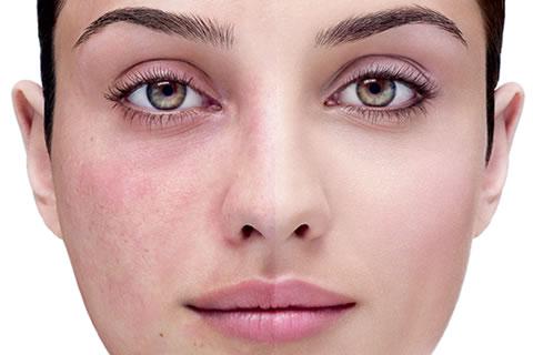 и причины купероз фото на лице лечение